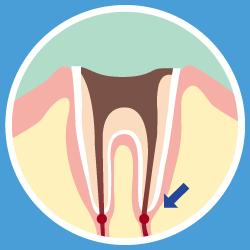 虫歯の画像⑤