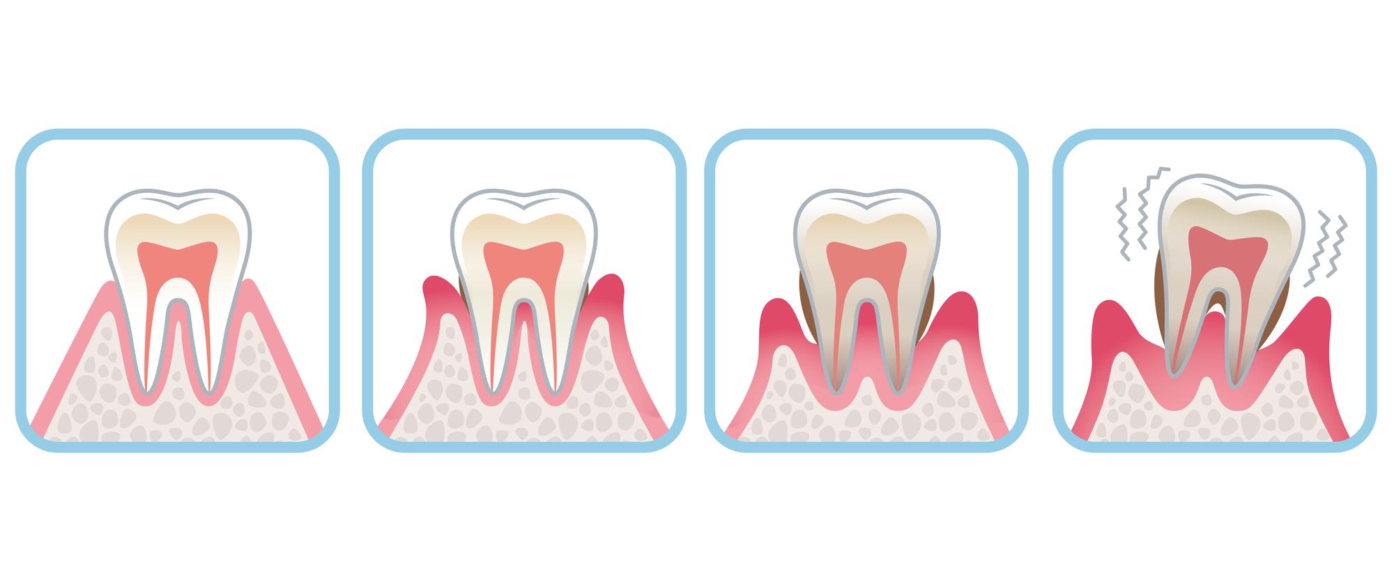 歯周病のステージイラスト