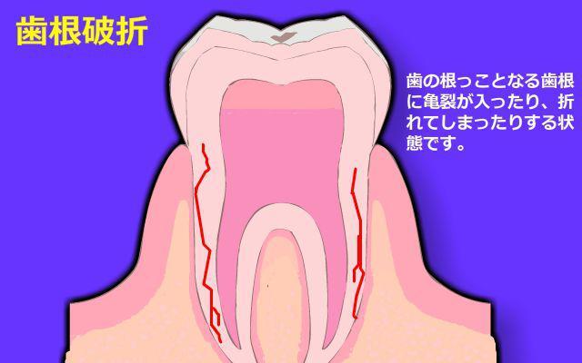 歯が欠ける・原因2