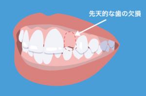 すきっ歯 欠損