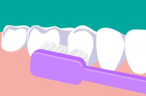 歯の磨き方・注意点