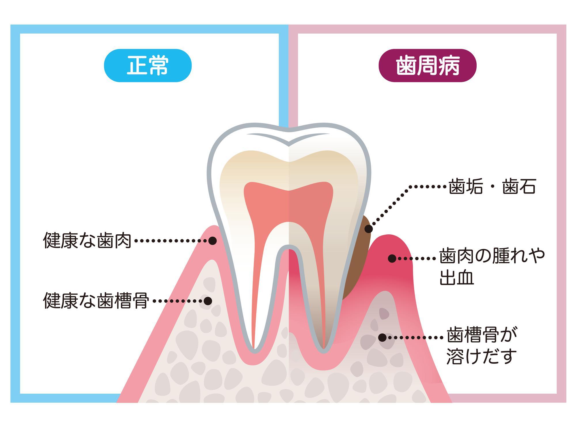 歯周病と健康な歯のイラスト