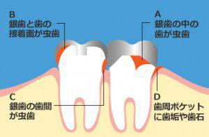銀歯を入れた後の虫歯