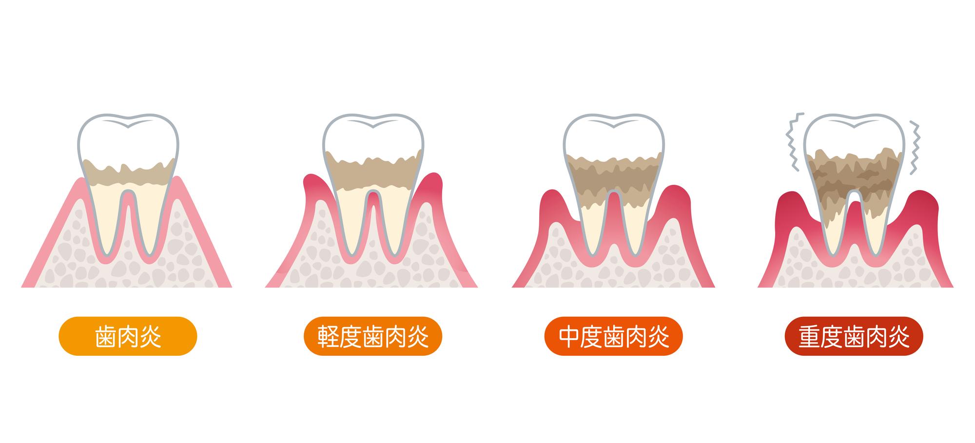 歯周病の進行イラスト