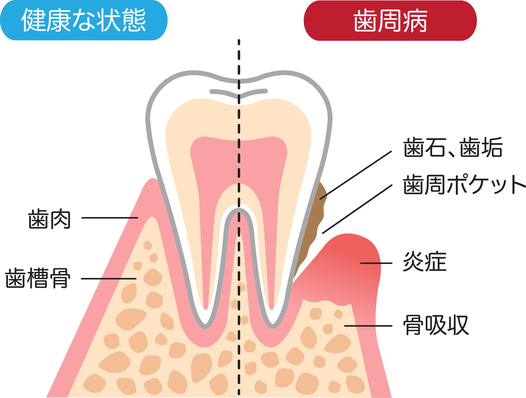 健康な歯茎と歯周病のイラスト