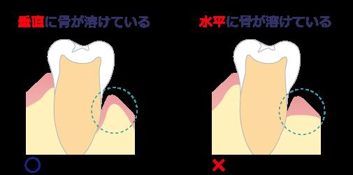 挿絵_歯周病治療02(改)