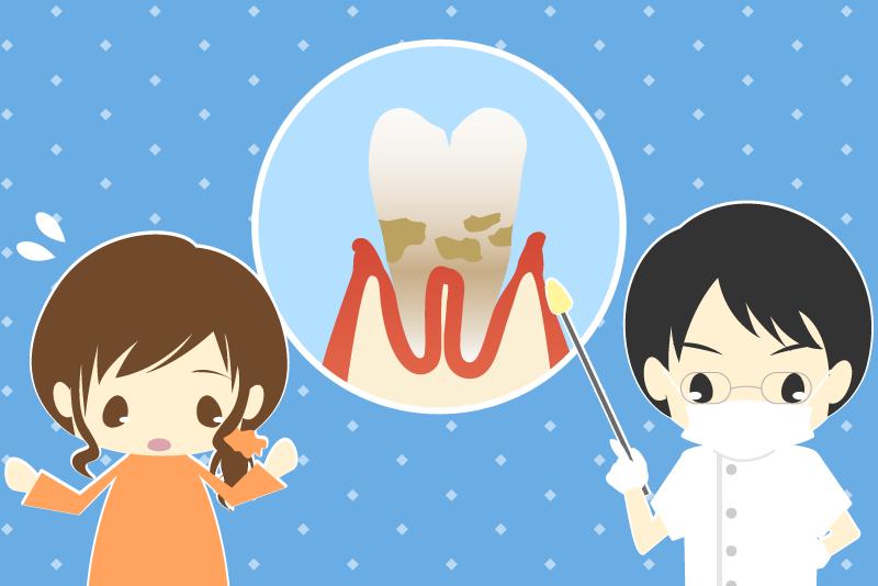 歯周病 治療