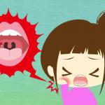 口内炎歯医者_2