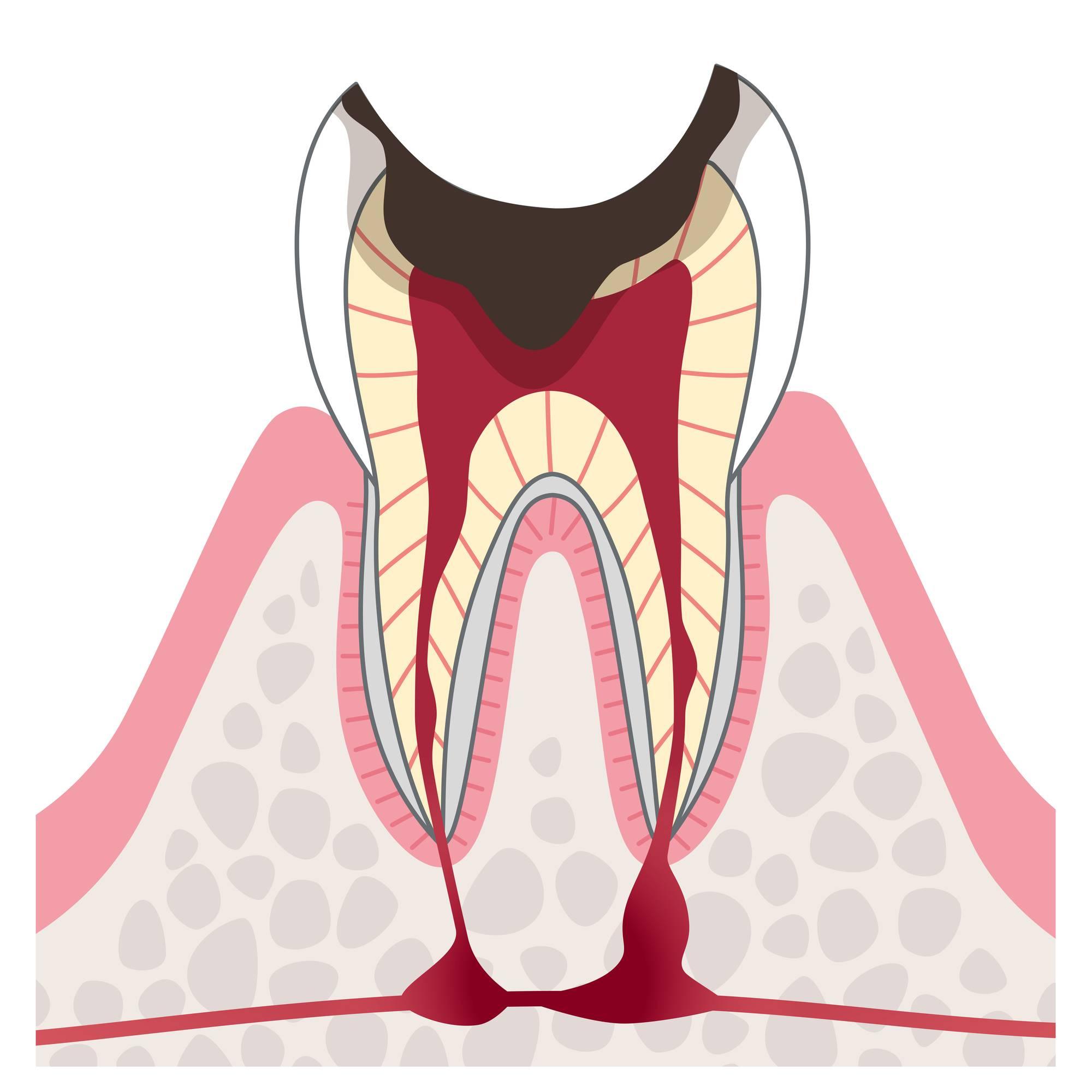 重度虫歯のイラスト