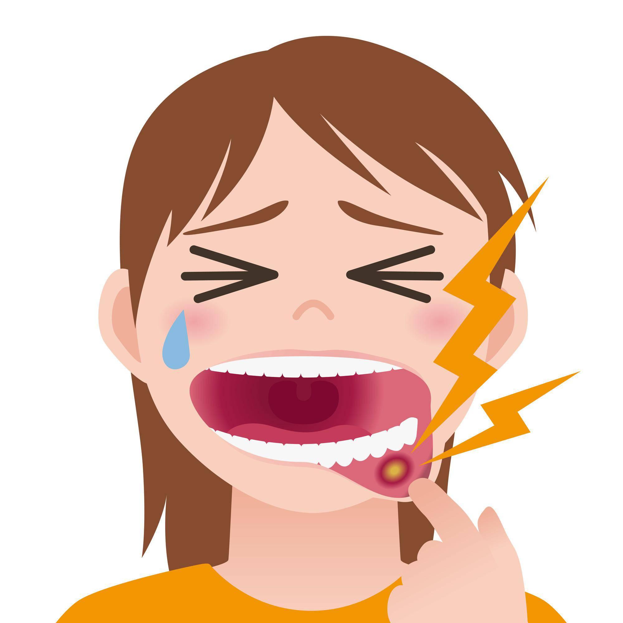 口内炎が痛い女性のイラスト