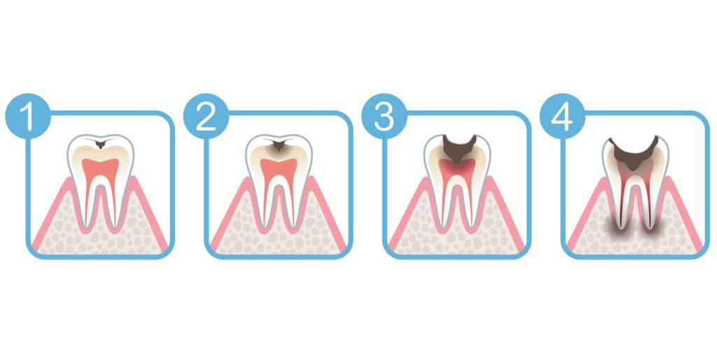 虫歯の進行度C1~C4まで解説するイラスト