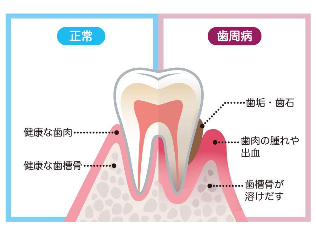 歯周病が起こるメカニズムを解説するイラスト