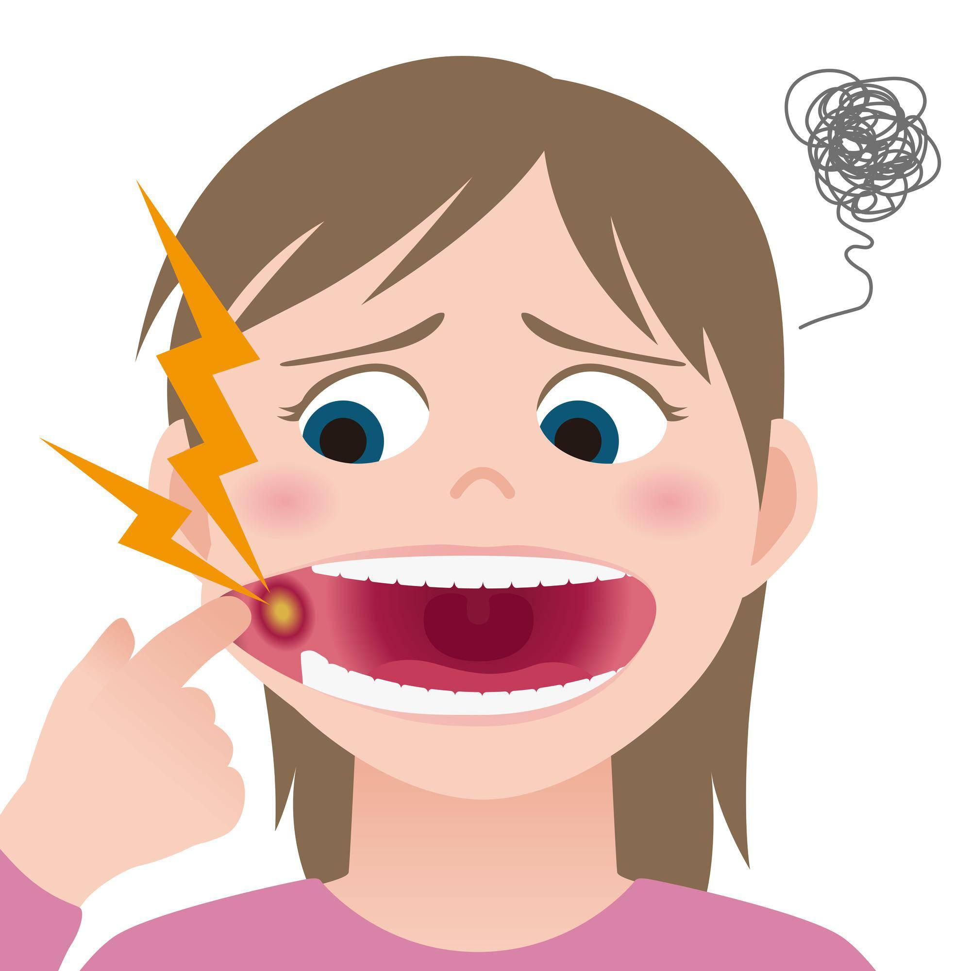 口内炎を痛がる女性