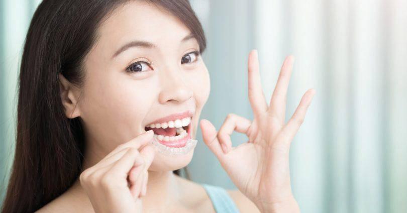 顎関節症_マウスピース