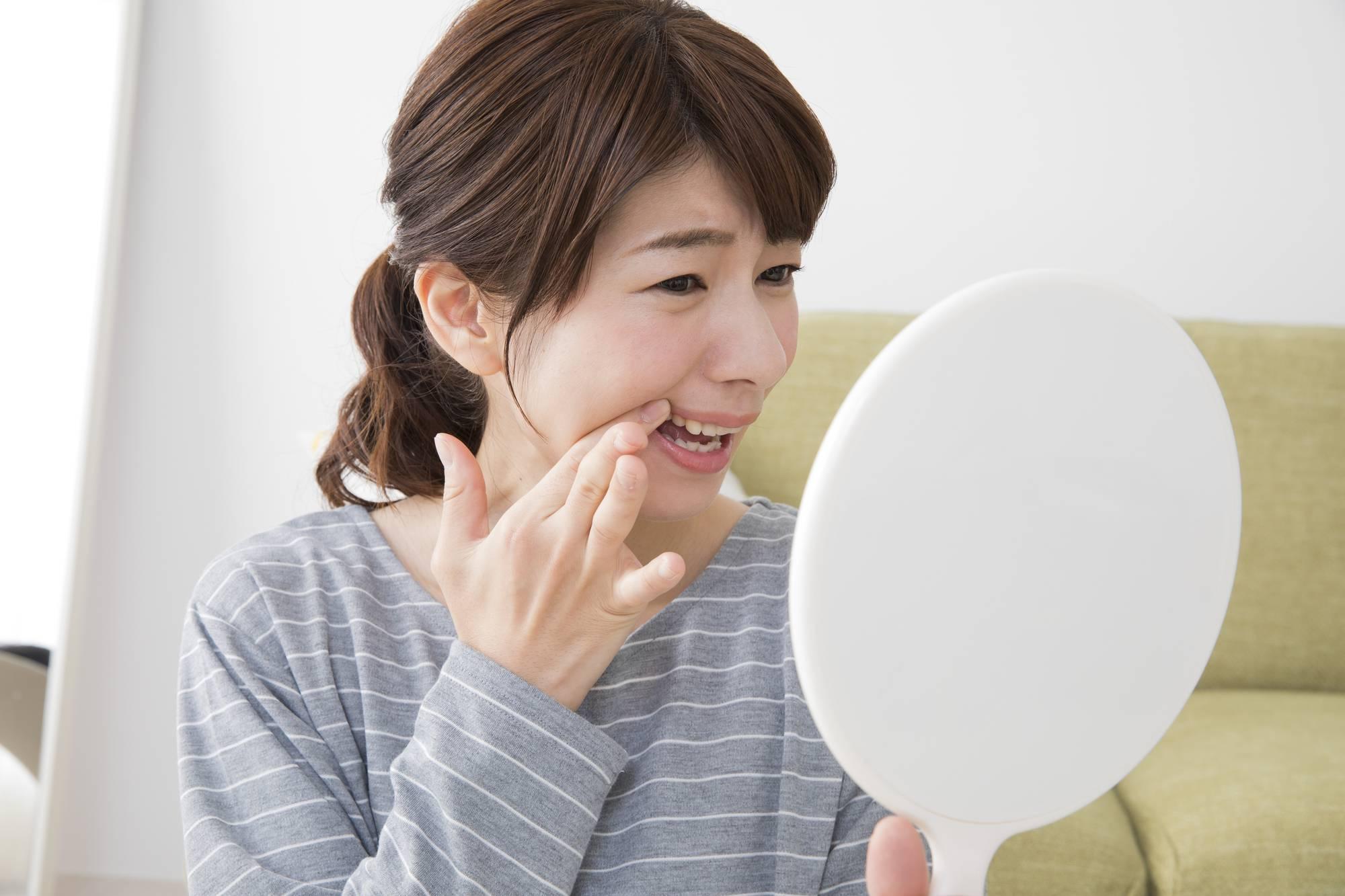 歯茎のできものを気にする女性