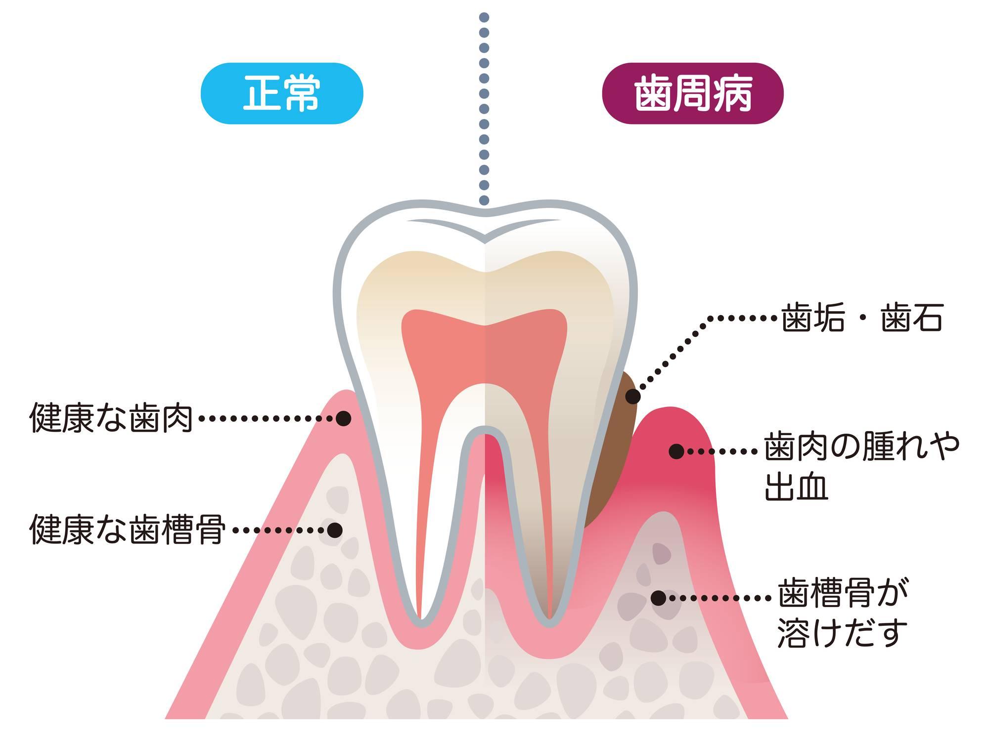 歯槽膿漏で歯が抜けるメカニズムのイラスト