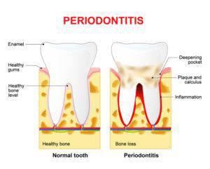 歯槽膿漏のイメージ
