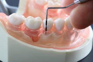 歯槽膿漏の歯周病検査