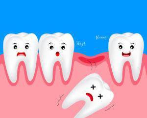 歯槽膿漏で歯が抜けるイメージ