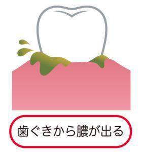 歯茎_膿_歯茎から膿が出る