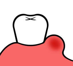 親知らず_膿_歯茎の腫れ