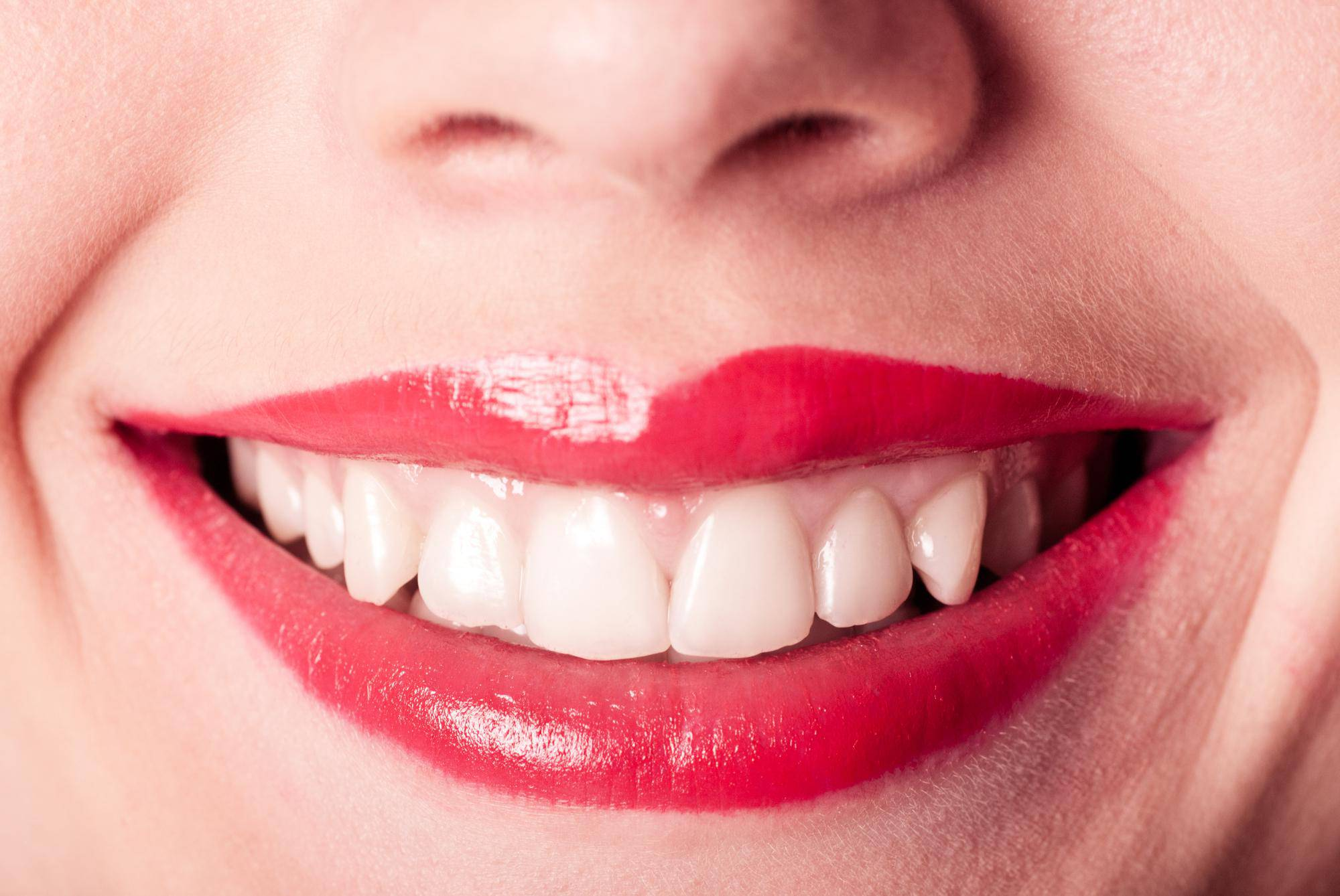 セラミック 歯 歯並び