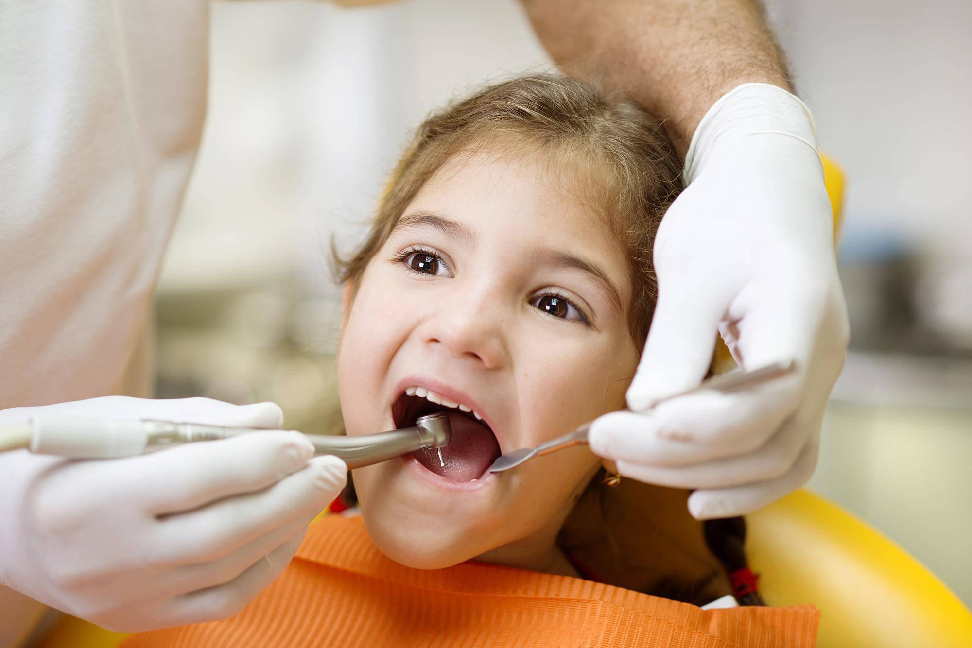 乳歯 虫歯