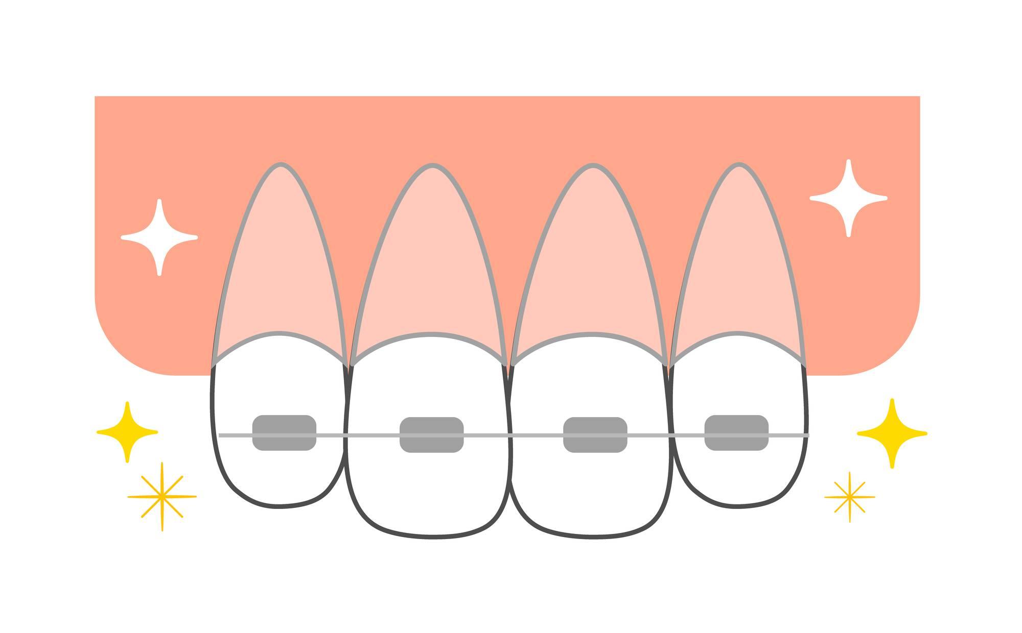 矯正中におすすめの歯ブラシを紹介! 毛束が三角形のブラシとは?